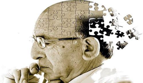 Boala Alzheimer (BA) in statistici - Doctor Dinu Constantin Tecuci